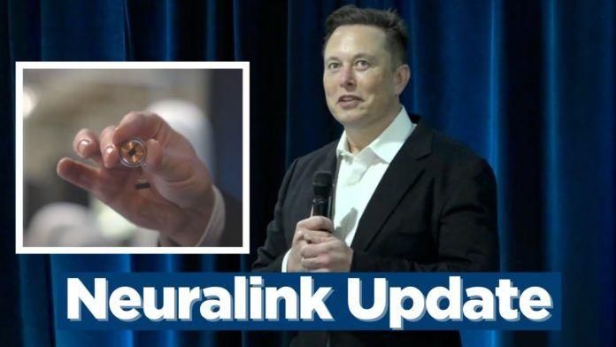 Elon Musk muestra el chip que se implantará en el cráneo y leerá la actividad del sistema nervioso