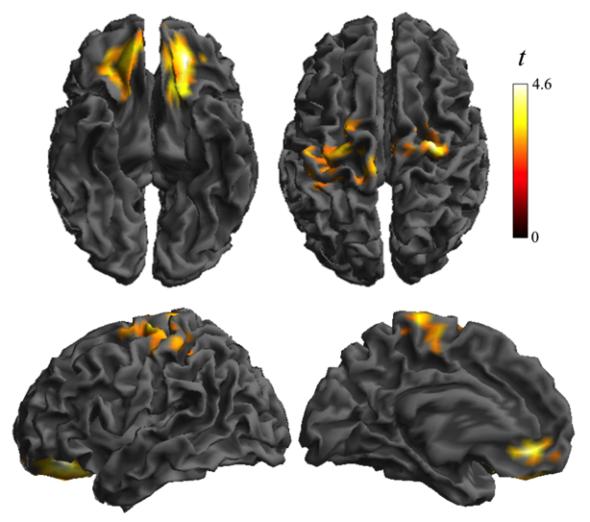 Alteración de la conectividad de la corteza orbitofrontal y somatosensorial, que se asocia a diferente (en sobrepeso) o anormal (en obesidad) actividad neuronal. Prensa Fundación